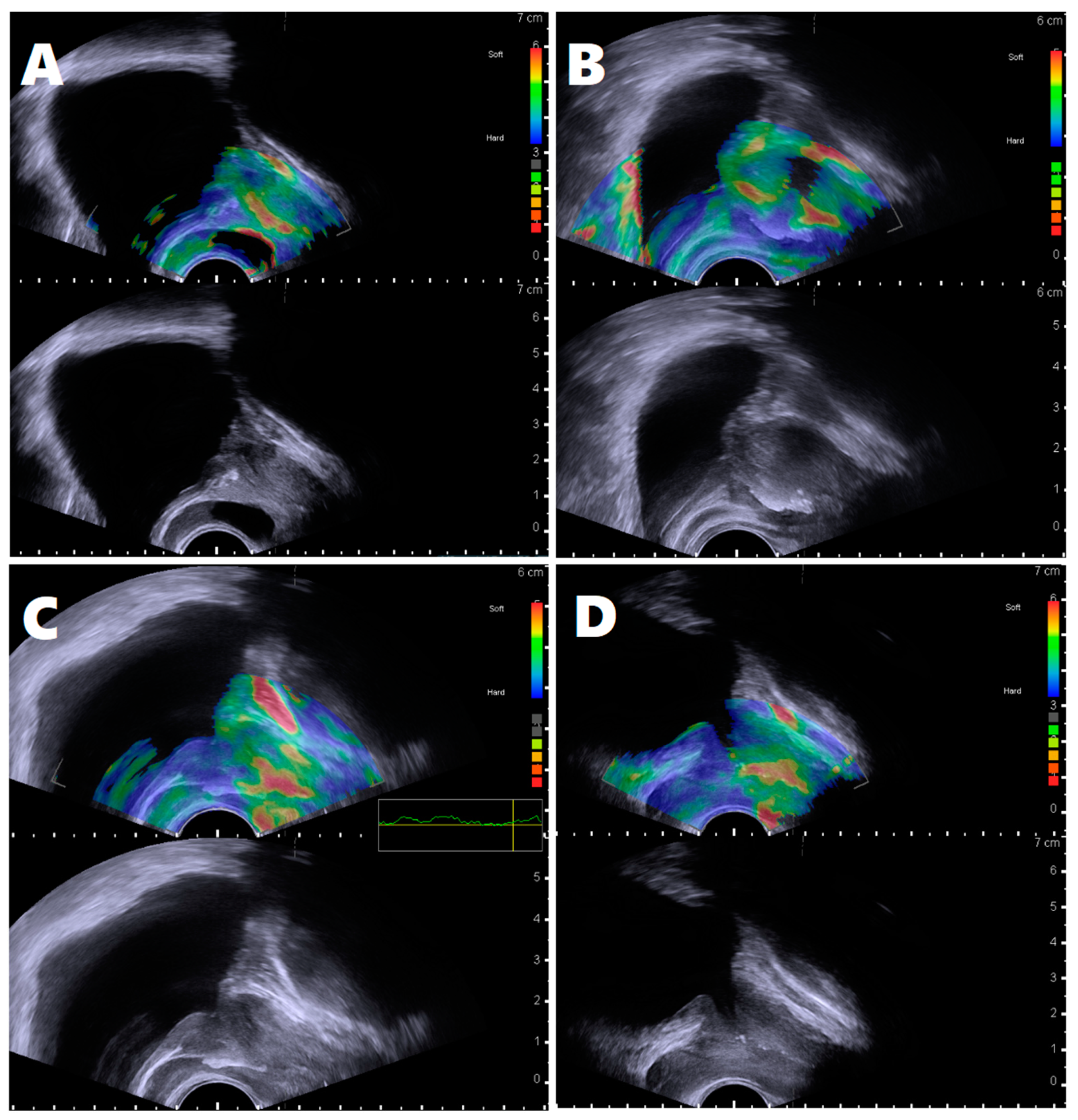 Prosztatafibrózis a caudalis zónában