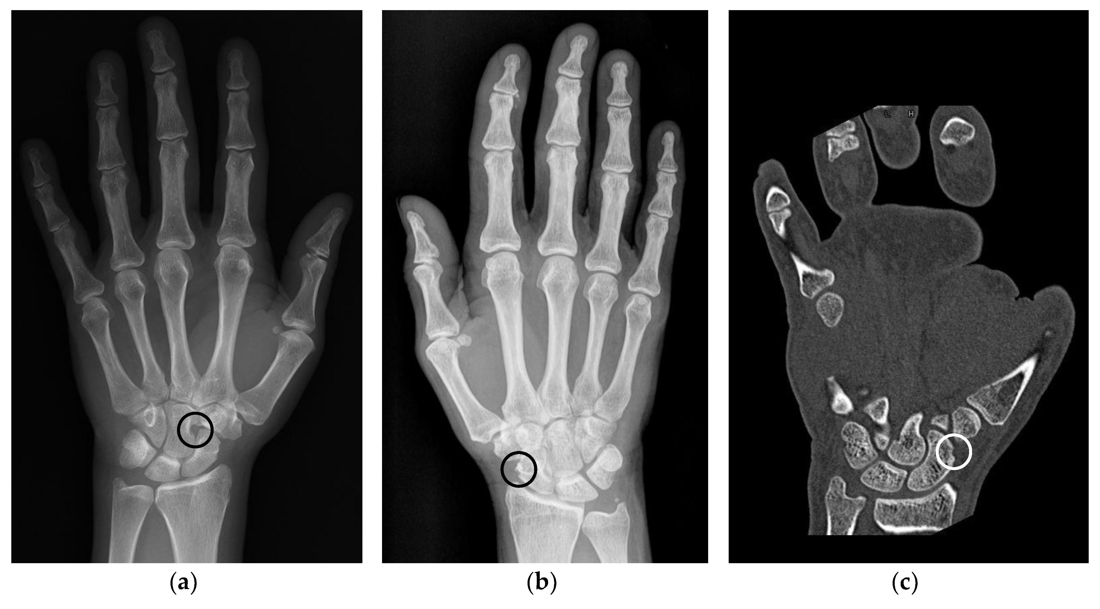 Jcm Free Full Text Pseudoerosions Of Hands And Feet In Rheumatoid Arthritis Anatomic Concepts And Redefinition Html The best gifs are on giphy. hands and feet in rheumatoid arthritis