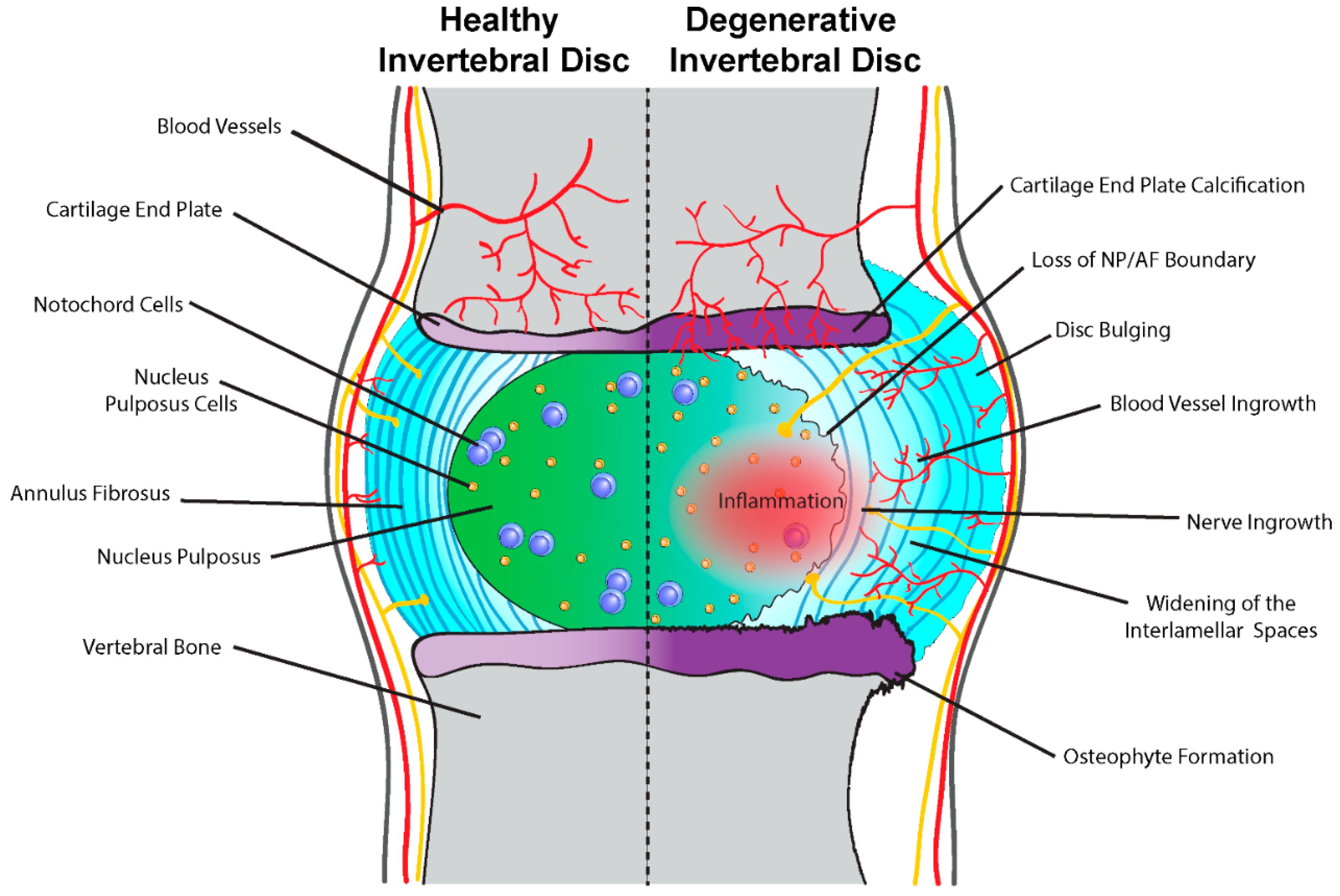Intervertebral Disk Diagram - Block And Schematic Diagrams •