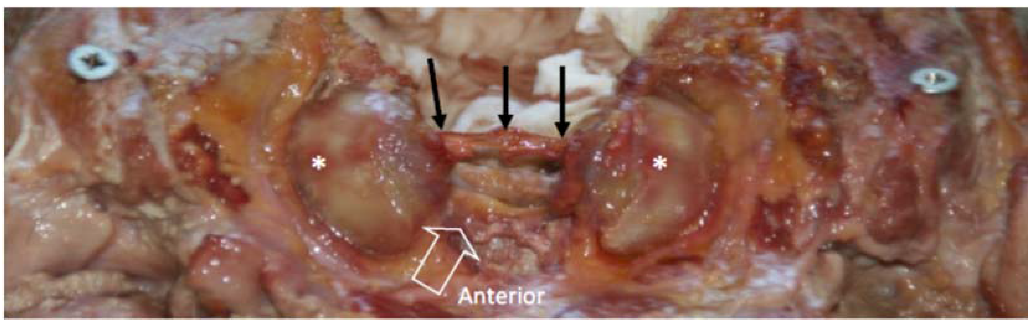 JFMK   Free Full-Text   Variability of Upper Cervical Anatomy: A ...