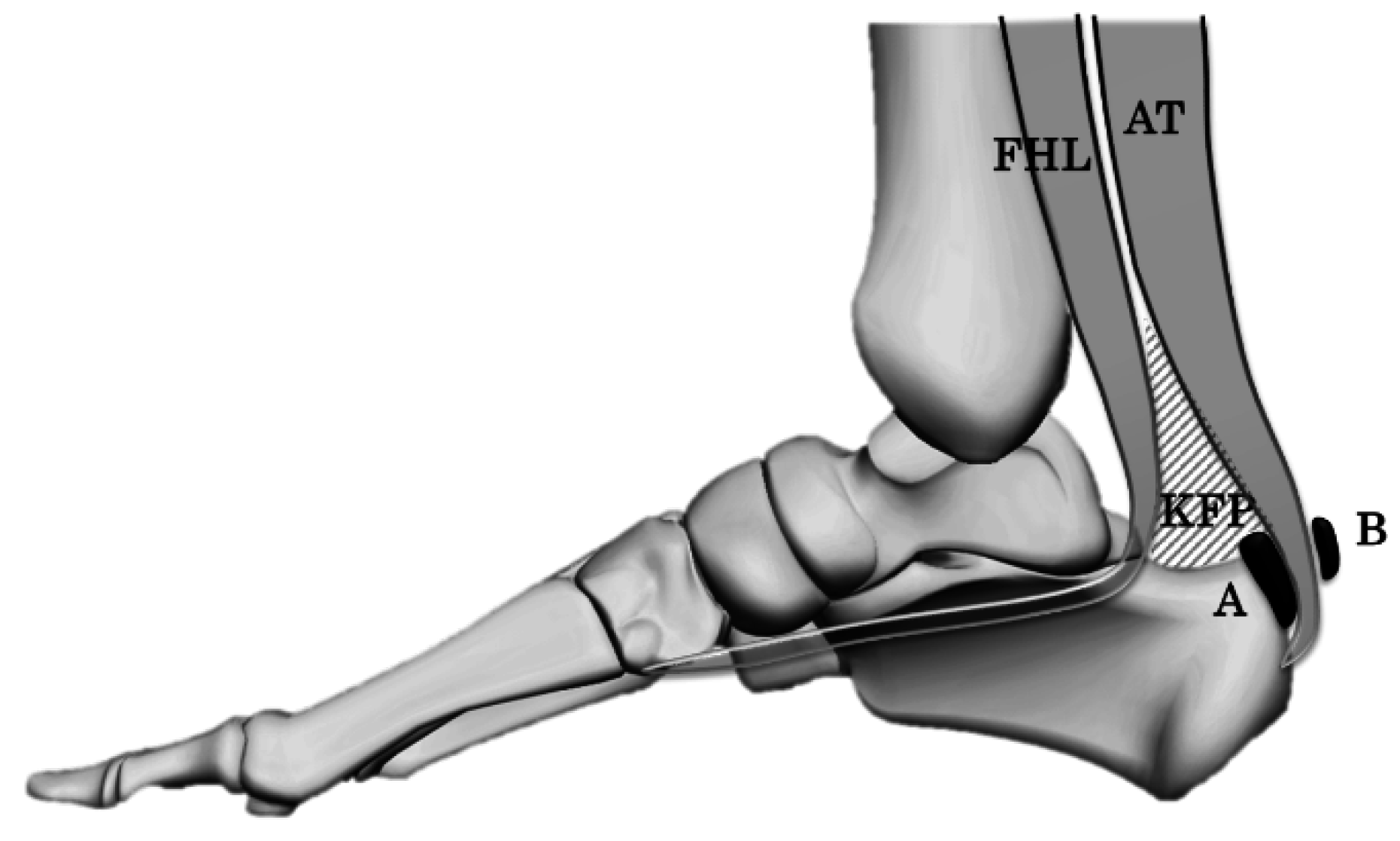Jfmk Free Full Text Width Of The Retrocalcaneal Bursa Is Not