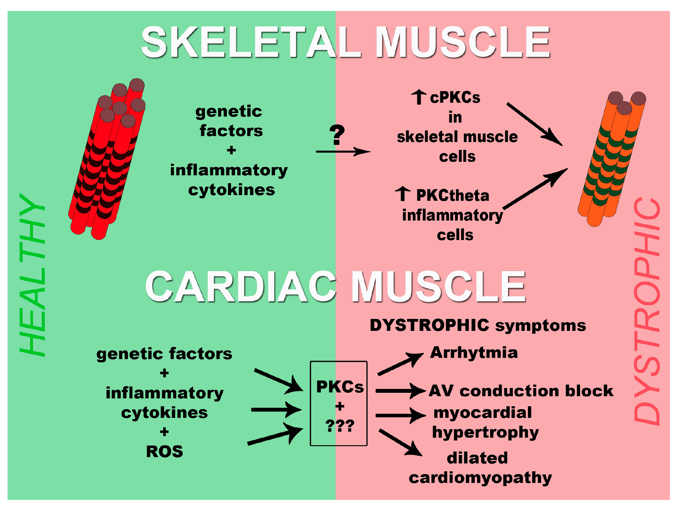 Jfmk Free Full Text Pkc Proteins And Muscular Dystrophy
