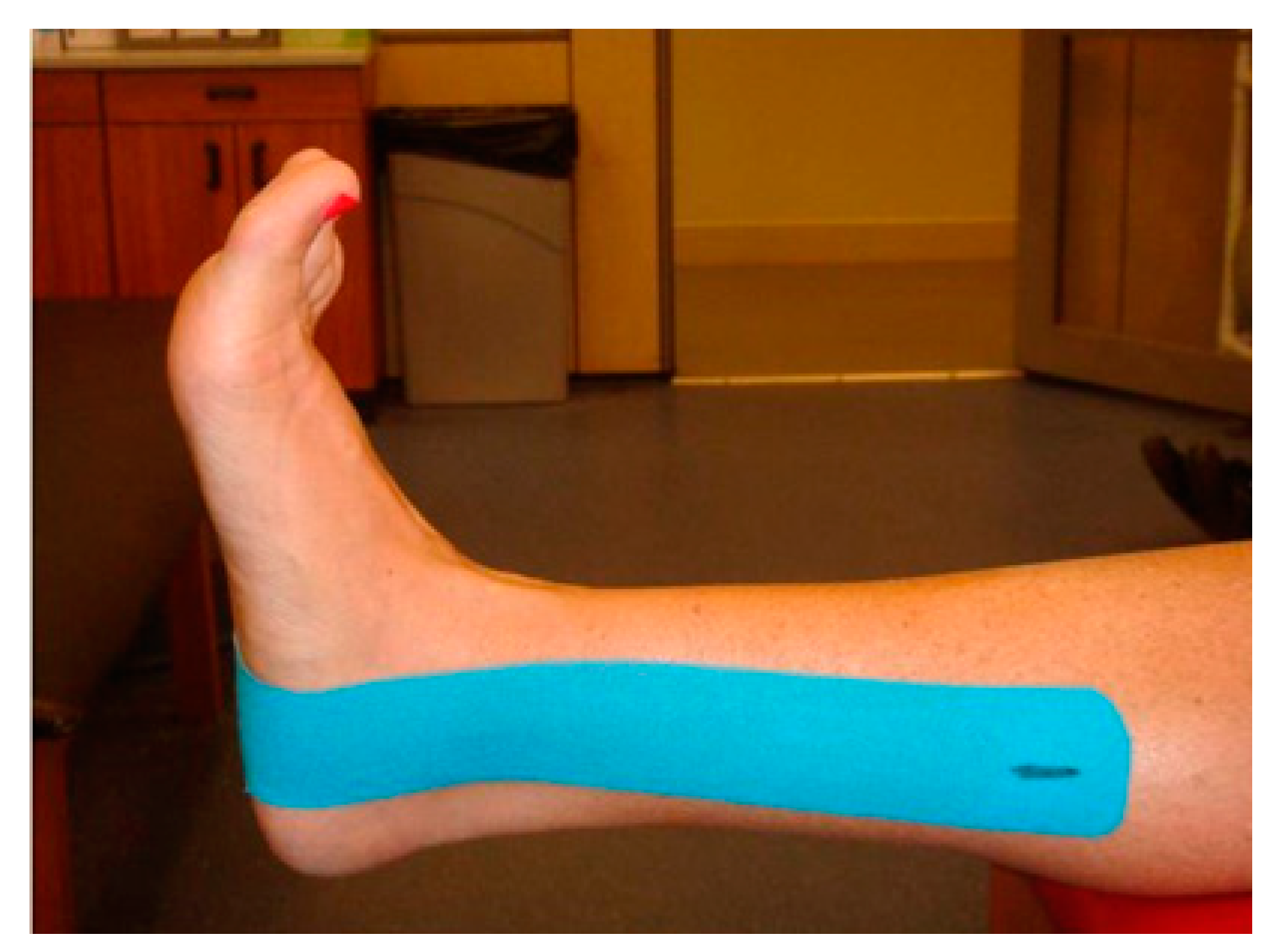 e0e705340cd6c JFMK | Free Full-Text | Effect of Kinesio® Taping on Ankle Complex ...