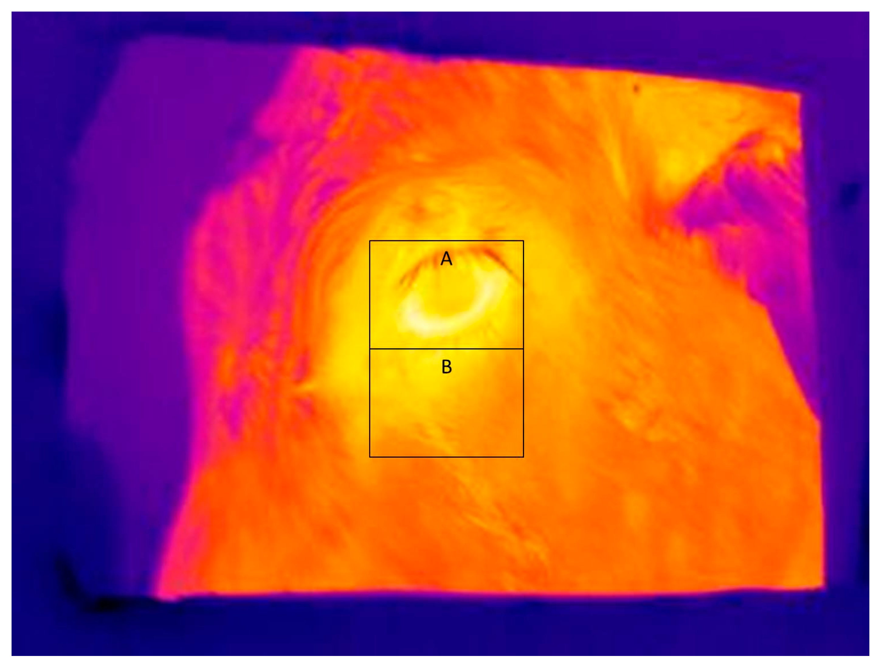 infrared film and thermography