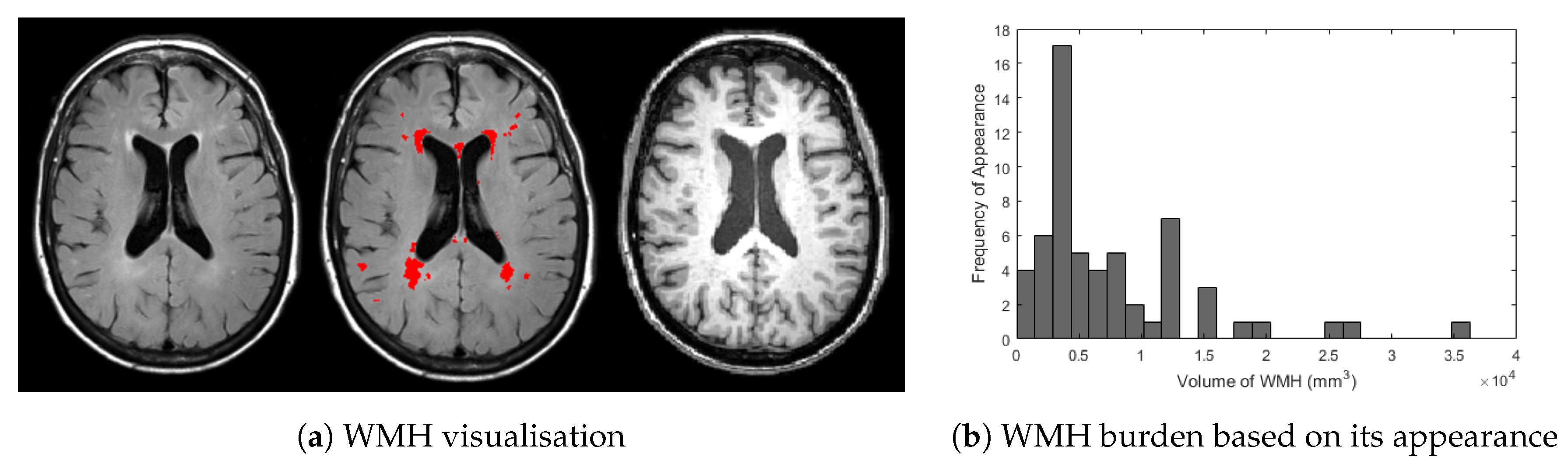 J  Imaging | Free Full-Text | Deep Learning vs  Conventional Machine