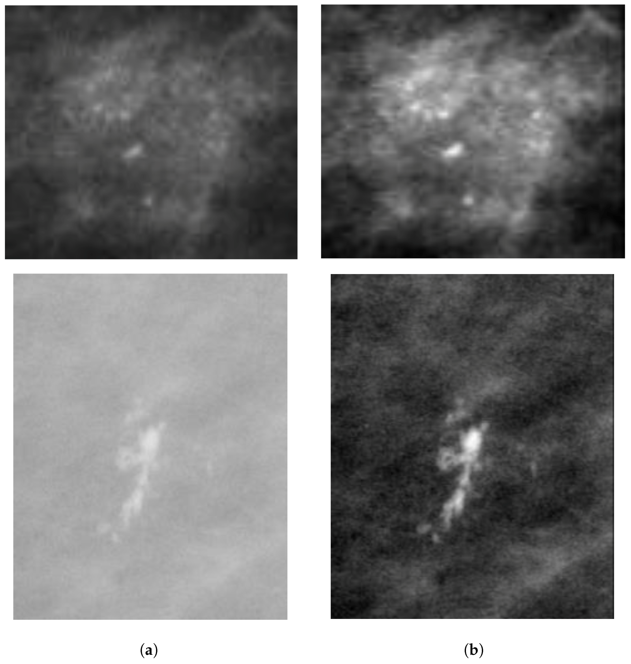 J Imaging Free Full Text Classification Of Microcalcification