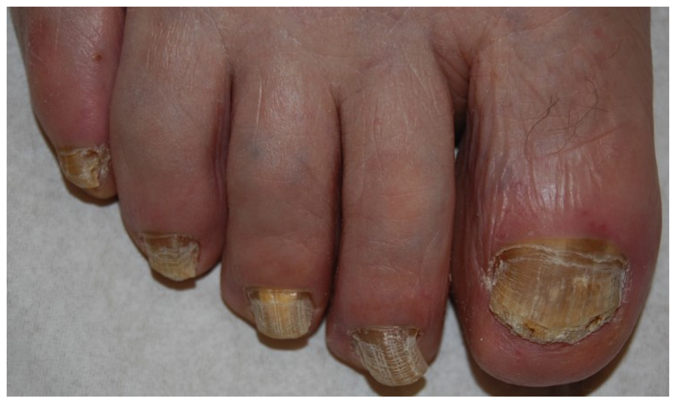 JoF   Free Full-Text   Onychomycosis: A Review   HTML