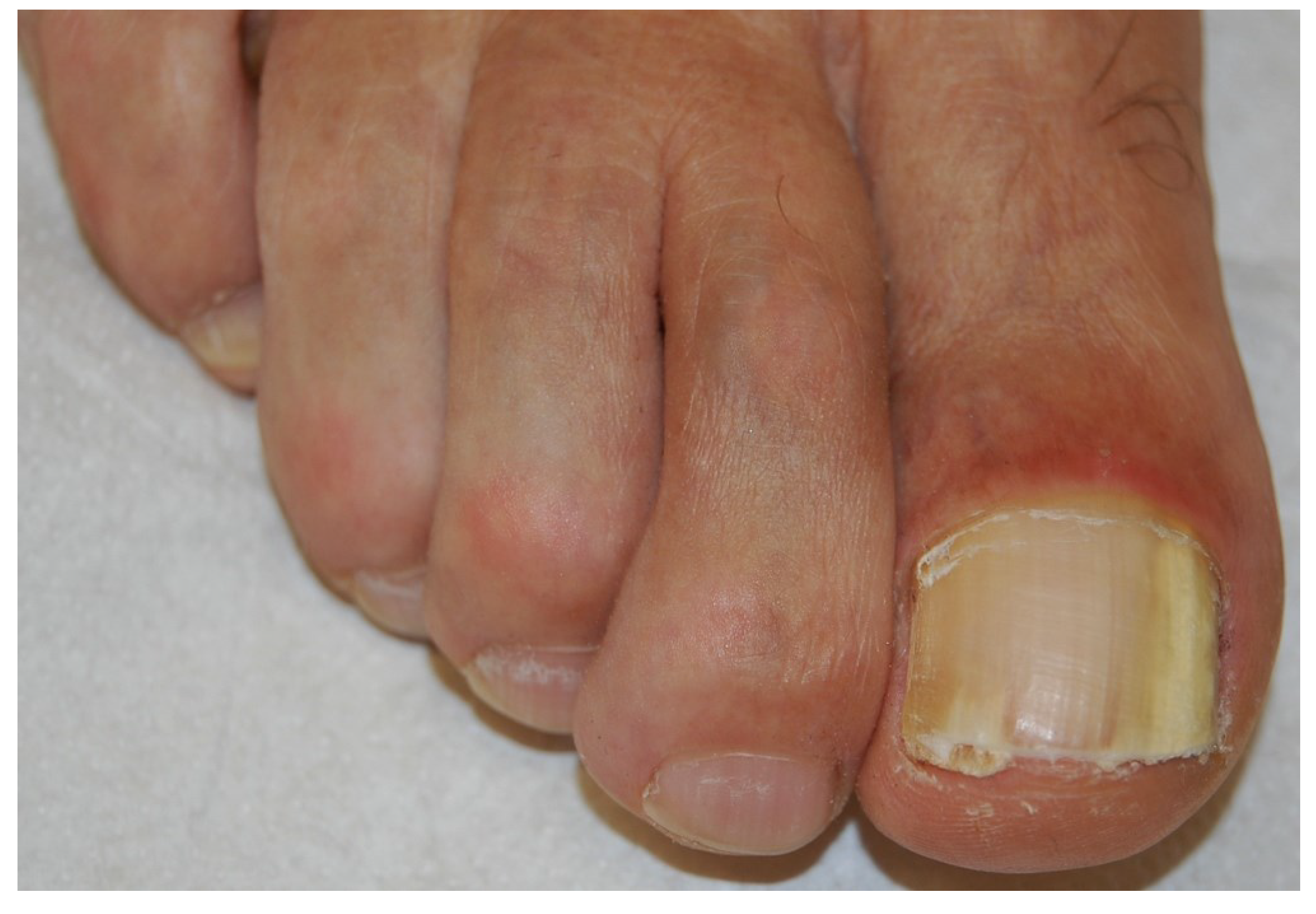 Causes, symptoms and treatment of onychomycosis of nails