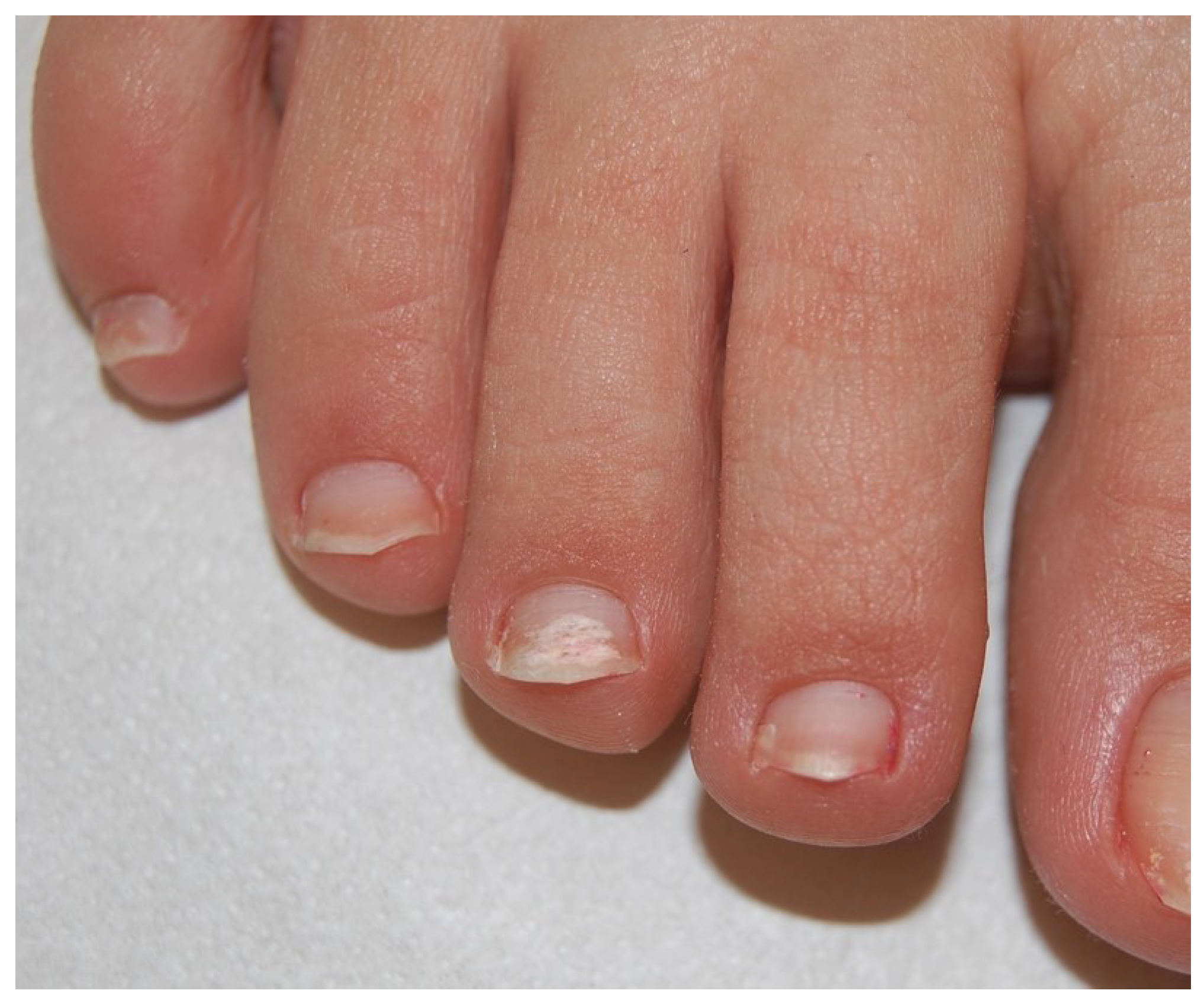 JoF | Free Full-Text | Onychomycosis: A Review | HTML