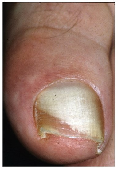 JoF | Special Issue : Cutaneous Fungal Diseases