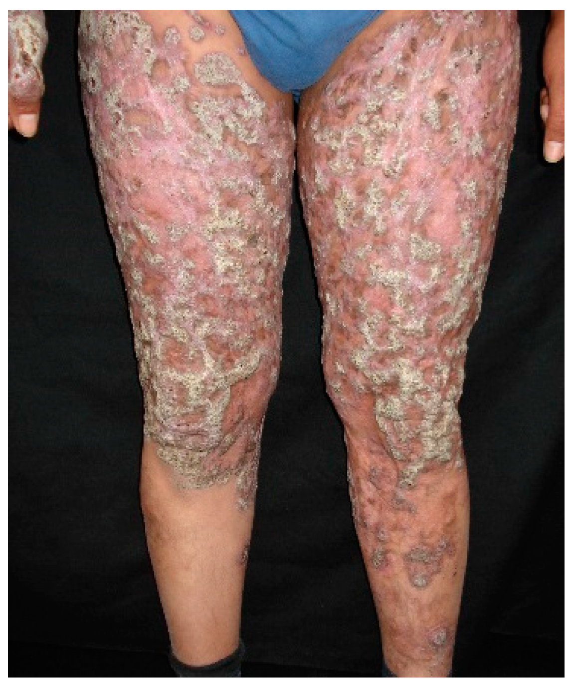 Cutaneous Disseminated and Extracutaneous Sporotrichosis: Current Status of a Complex Disease