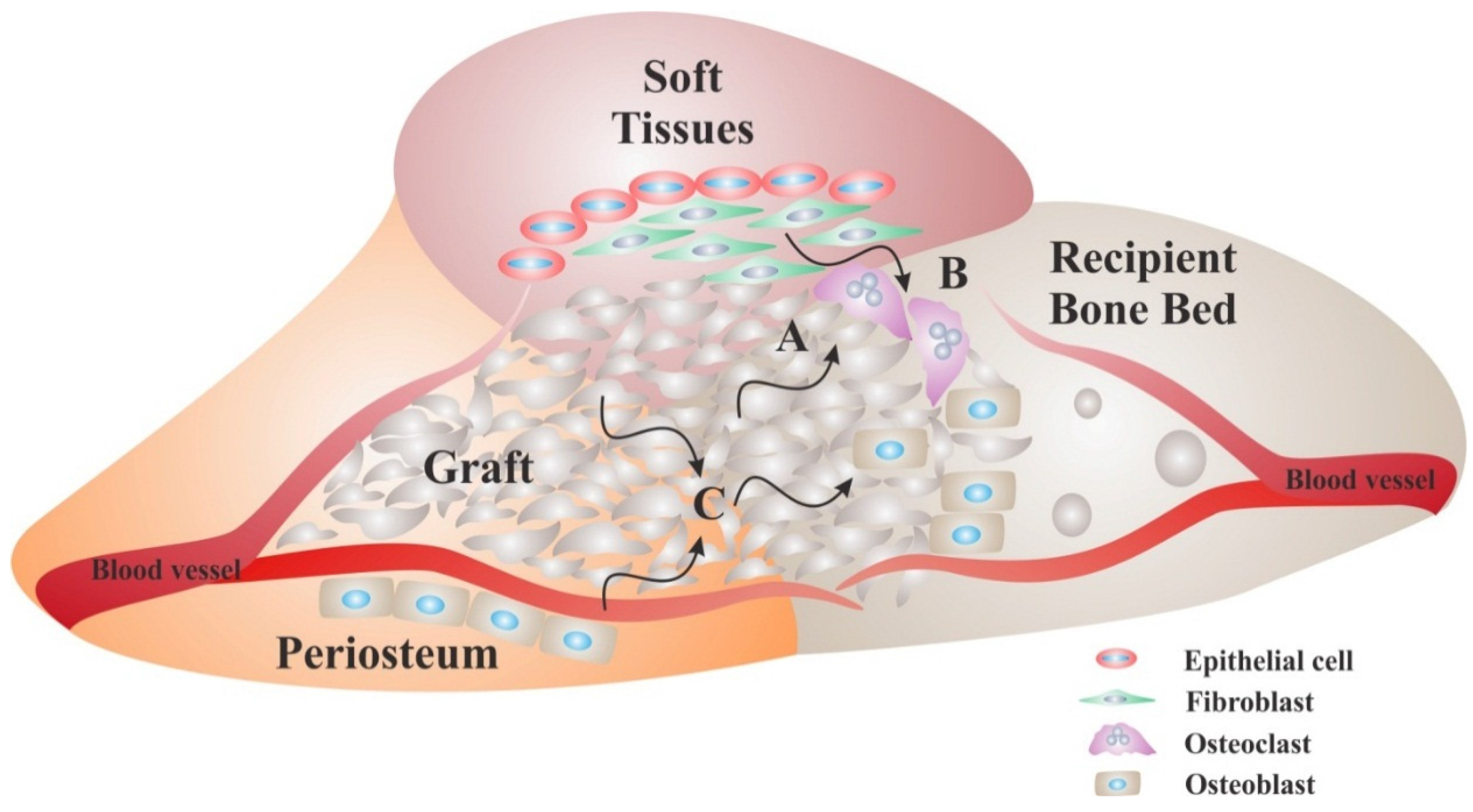 Materials | Free Full-Text | Bone Replacement Materials and