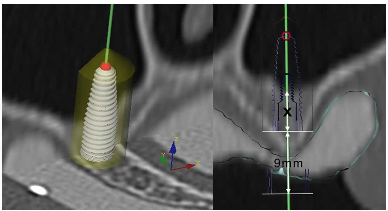 Sinus Floor Elevation With Graft : Materials free full text graft remodeling following