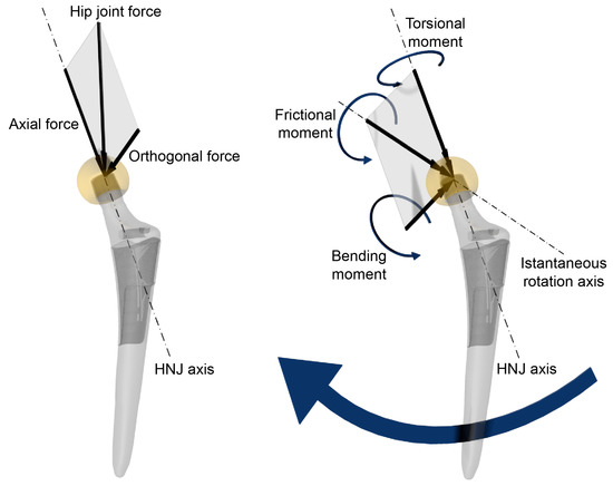 Materials | Free Full-Text | In Vivo Damage of the Head-Neck