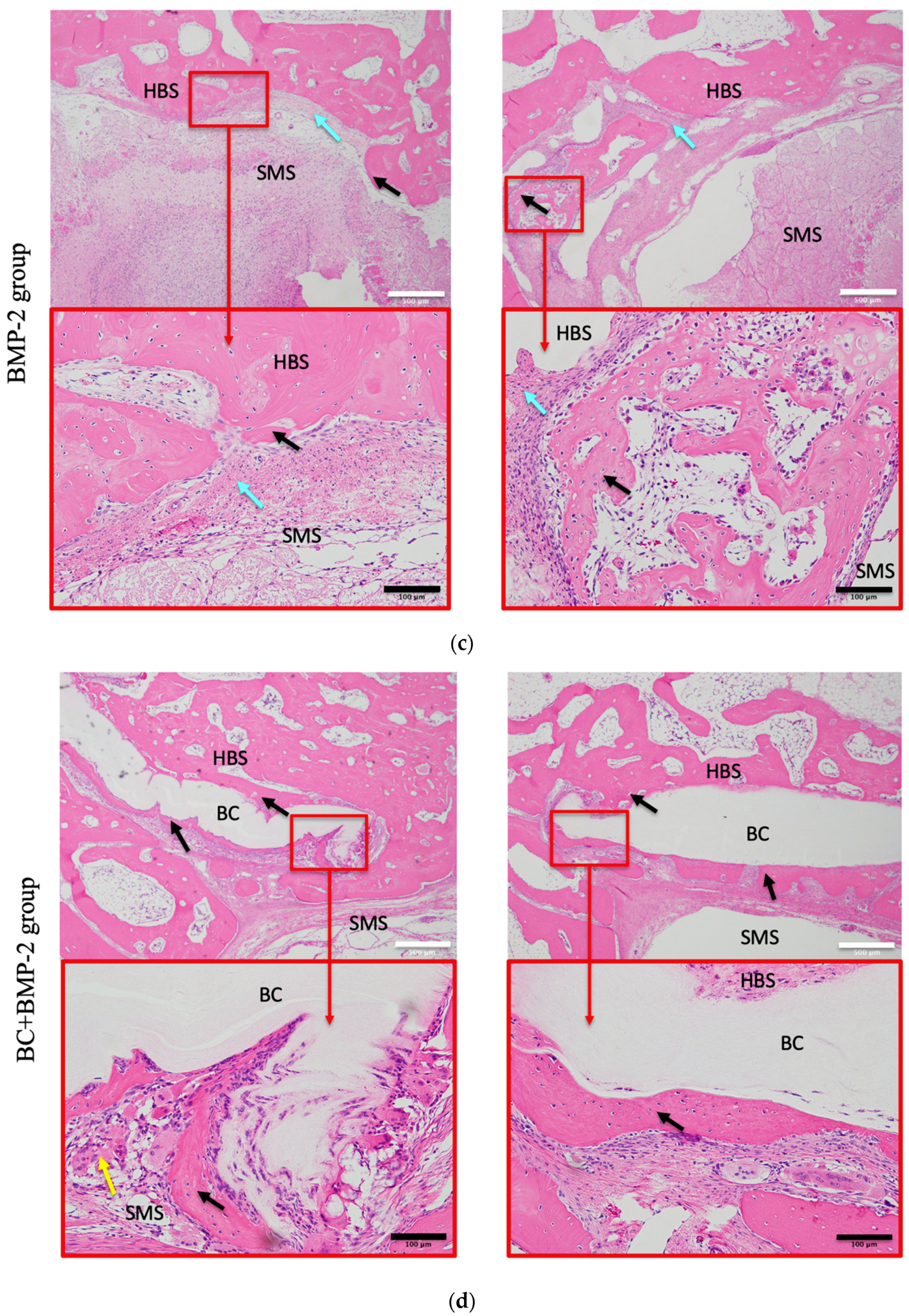 Materials | Free Full-Text | Efficacy of Bacterial Cellulose