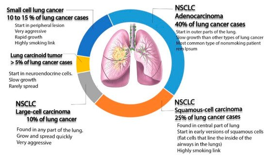 Materials Free Full Text Nano Targeted Therapies Made Of Lipids And Polymers Have Promising Strategy For The Treatment Of Lung Cancer Html