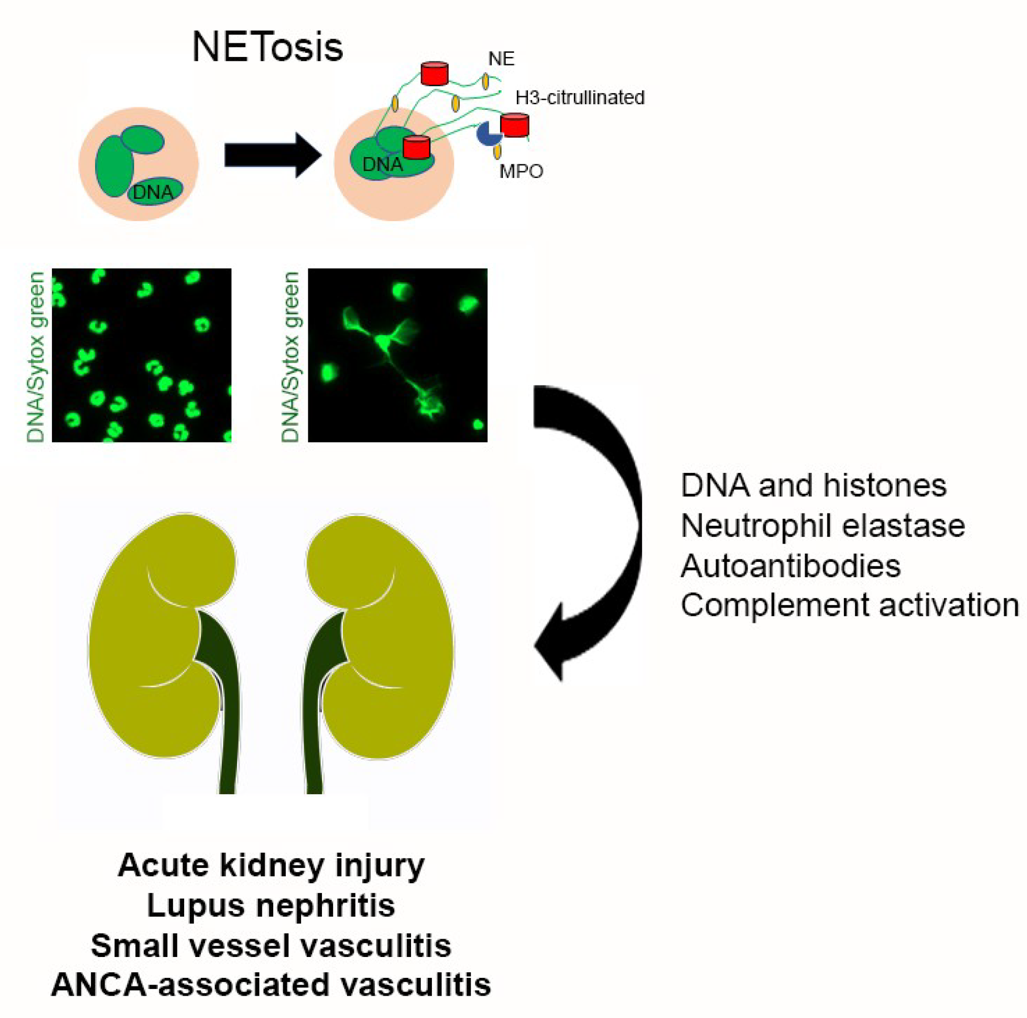 Medicina Free Full Text Neutrophil Extracellular Traps In The Establishment And Progression Of Renal Diseases Html