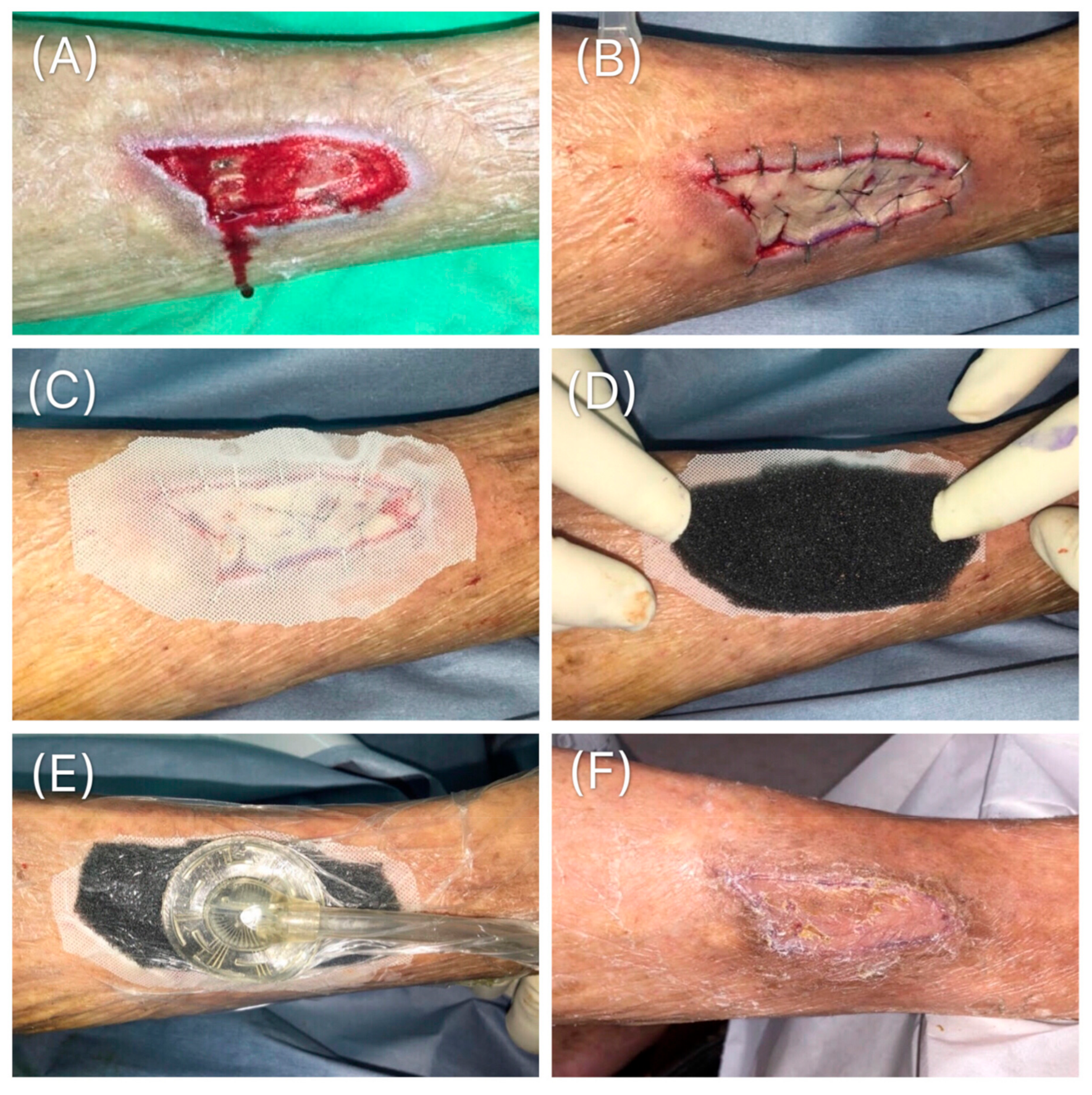 Medicina Free Full Text Retrospective Study On The Clinical Superiority Of The Vacuum Assisted Closure System With A Silicon Based Dressing Over The Conventional Tie Over Bolster Technique In Skin Graft Fixation Html