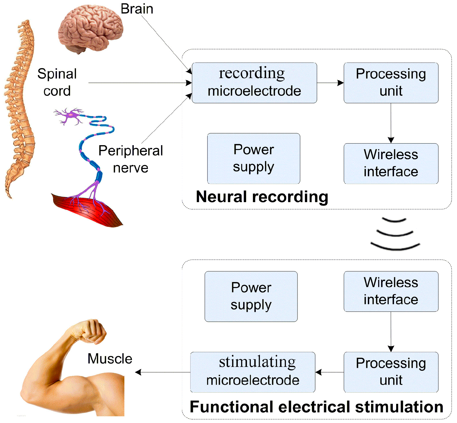 Micromachines | Free Full-Text | Progress in Research of Flexible MEMS Microelectrodes for