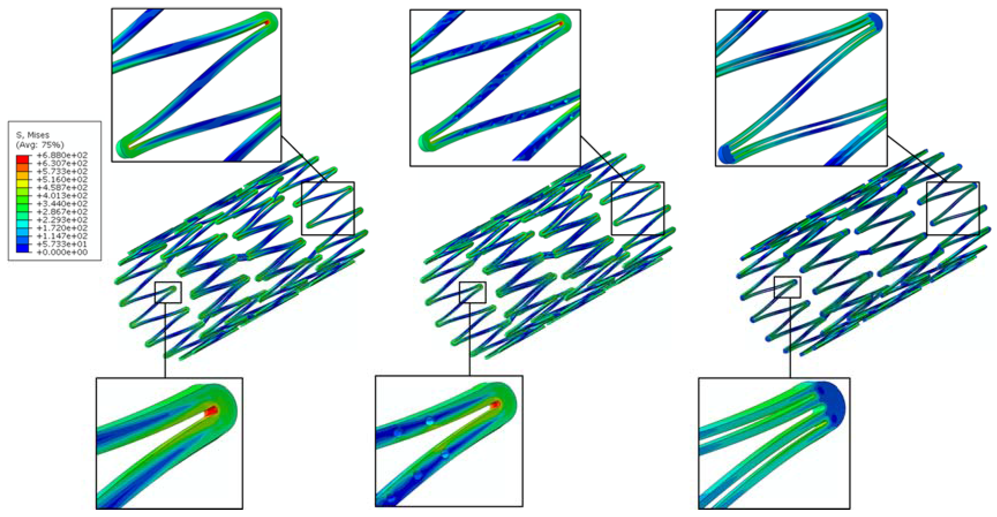 Micromachines   Free Full-Text   Rhombic-Shaped Channel Stent with ...