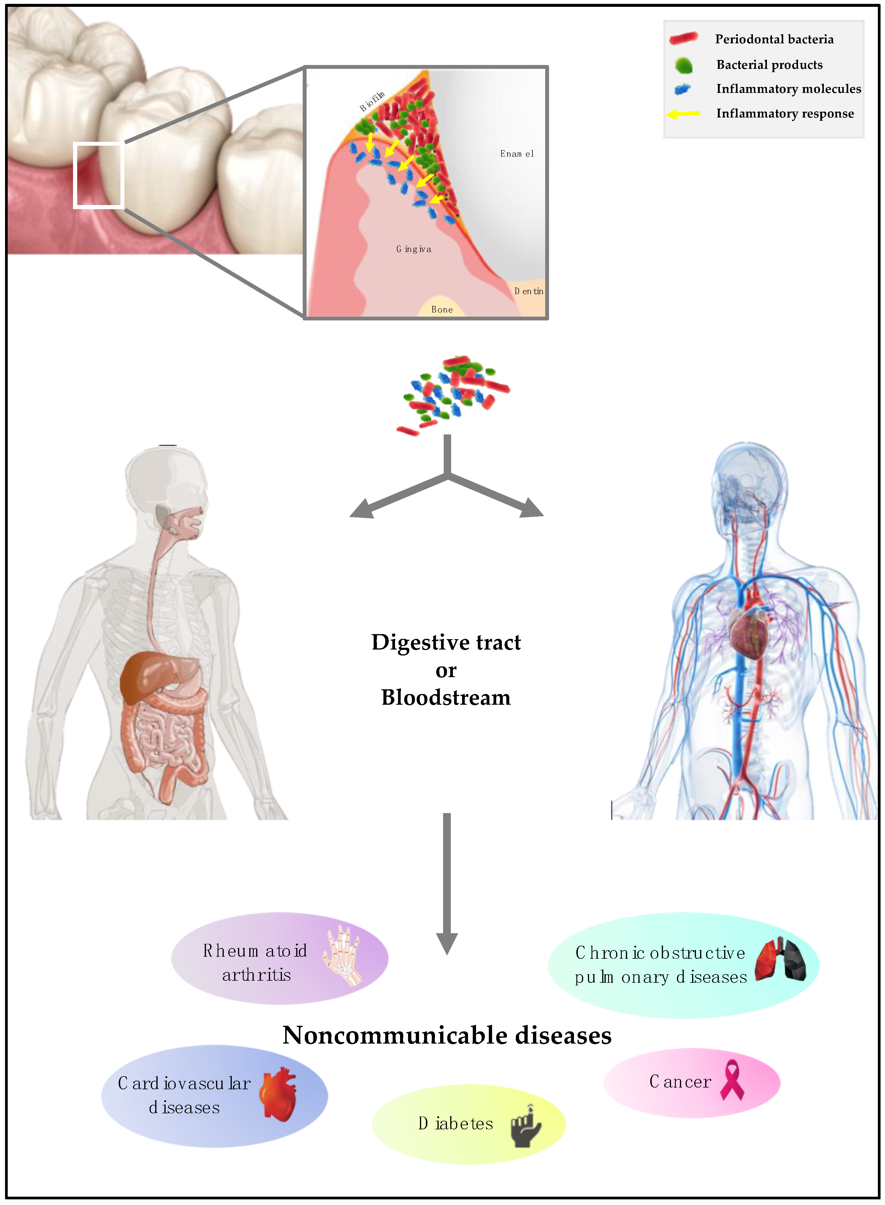 Microorganisms Free Full Text Periodontal Pathogens As Risk Factors Of Cardiovascular Diseases Diabetes Rheumatoid Arthritis Cancer And Chronic Obstructive Pulmonary Disease Is There Cause For Consideration Html