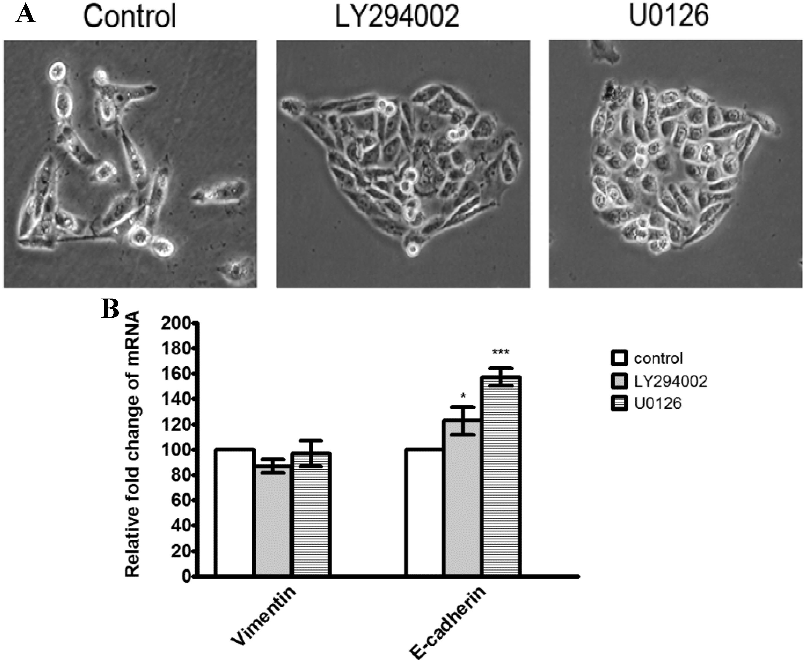 Inhibition of the PI3K/Akt pathway increases the