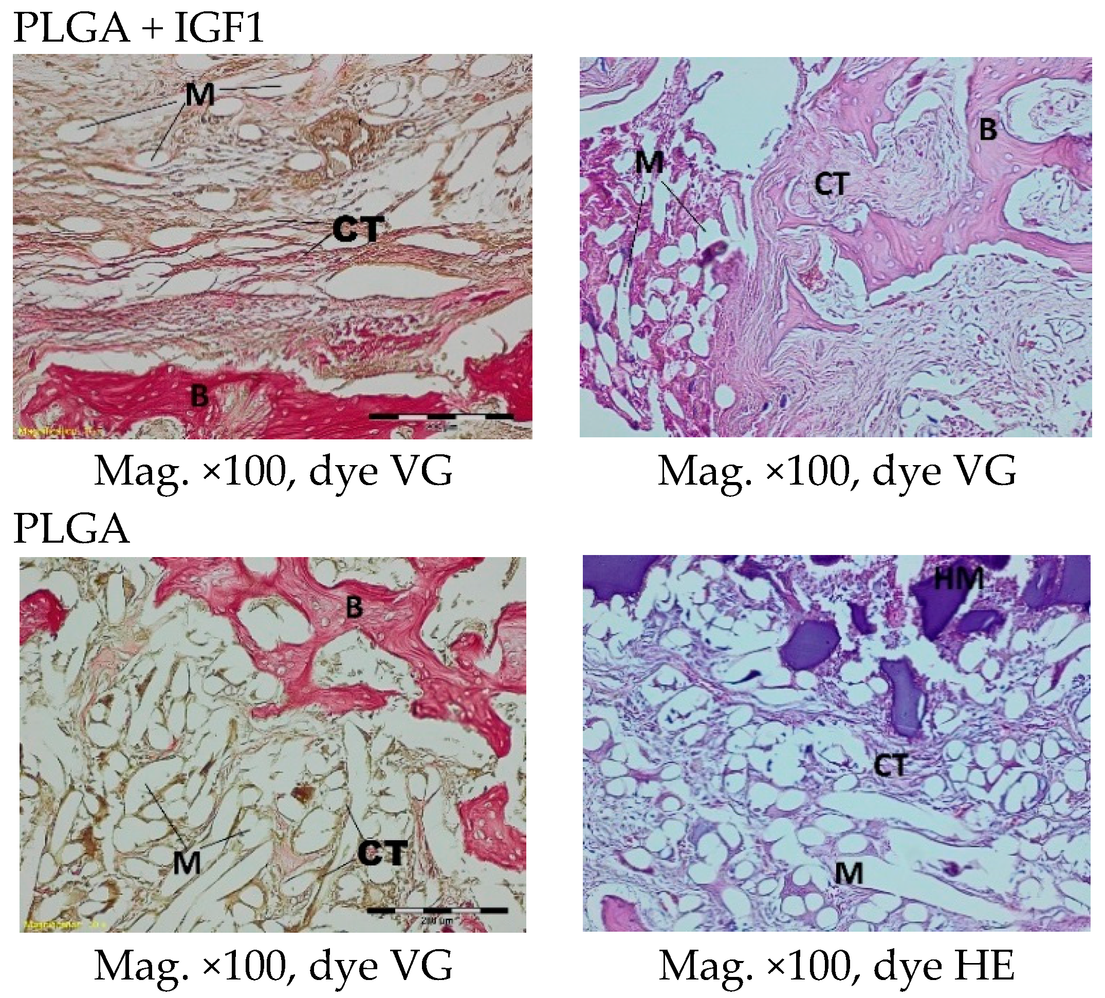 Molecules Free Full Text Biological Properties Of Low Toxic Plga And Plga Phb Fibrous Nanocomposite Scaffolds For Osseous Tissue Regeneration Evaluation Of Potential Bioactivity Html