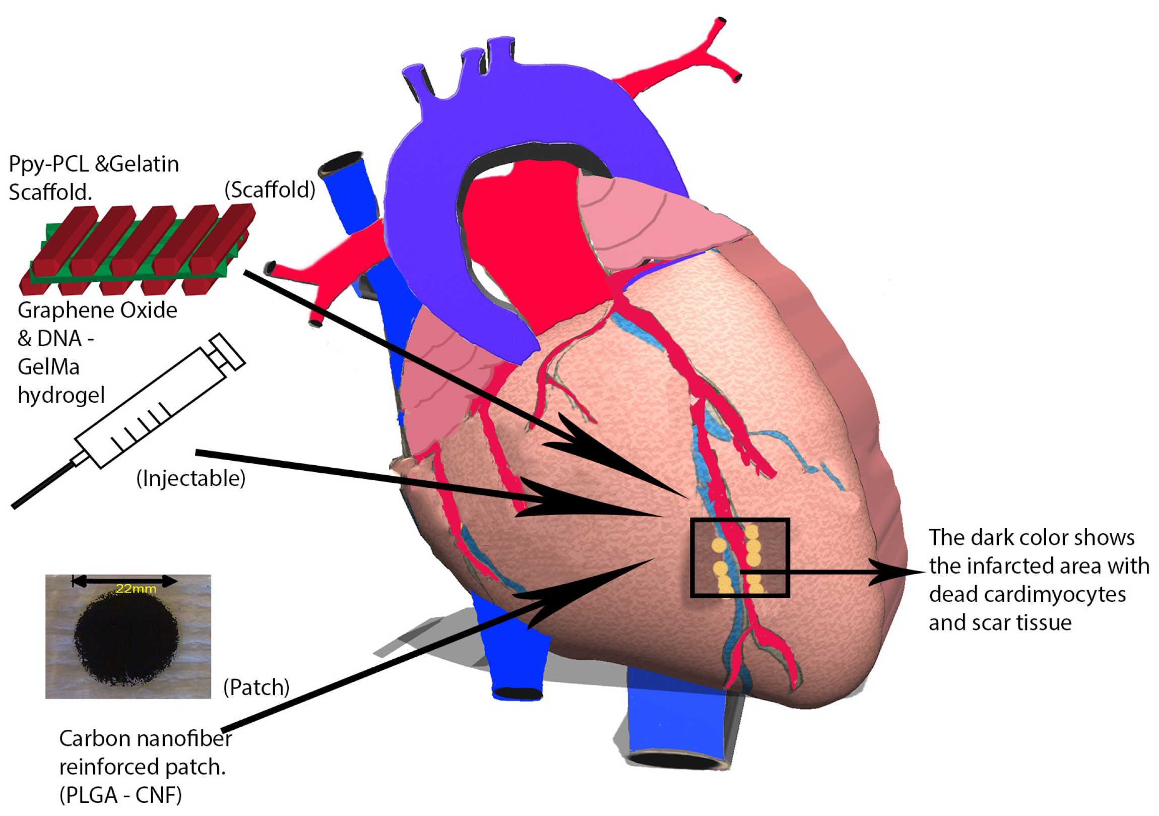 Nanomaterials | Free Full-Text | Nanomaterials for Cardiac Myocyte ...