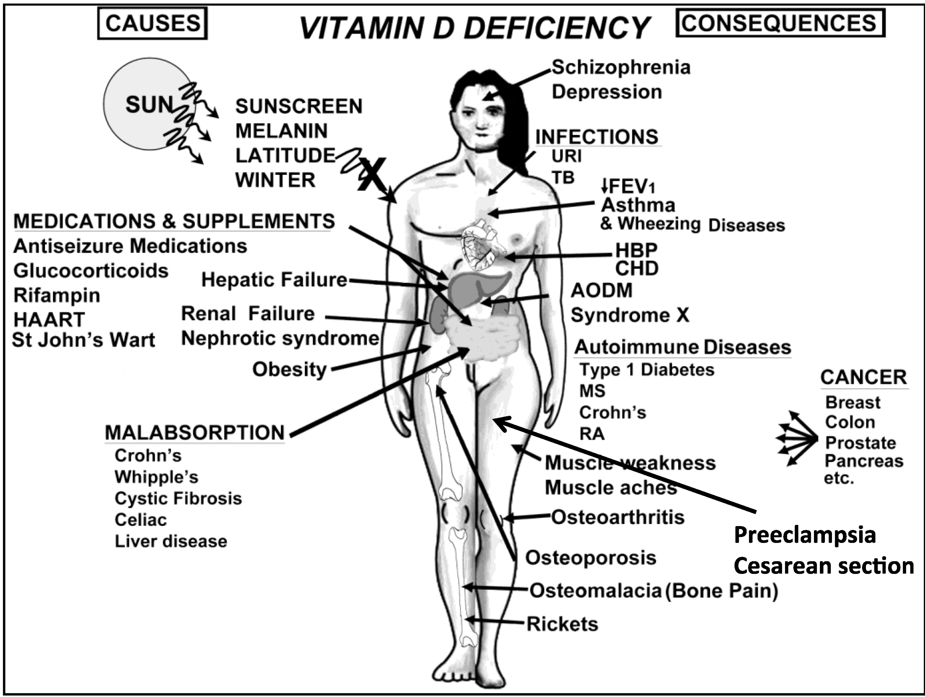 Https Food Containing Vitamin D