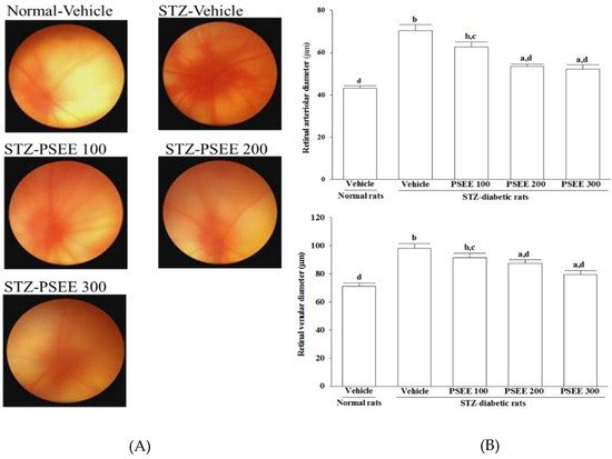 Antioxidant-Rich Extract from Plantaginis Semen Ameliorates Diabetic Retinal Injury in a Streptozotocin-Induced Diabetic Rat Model
