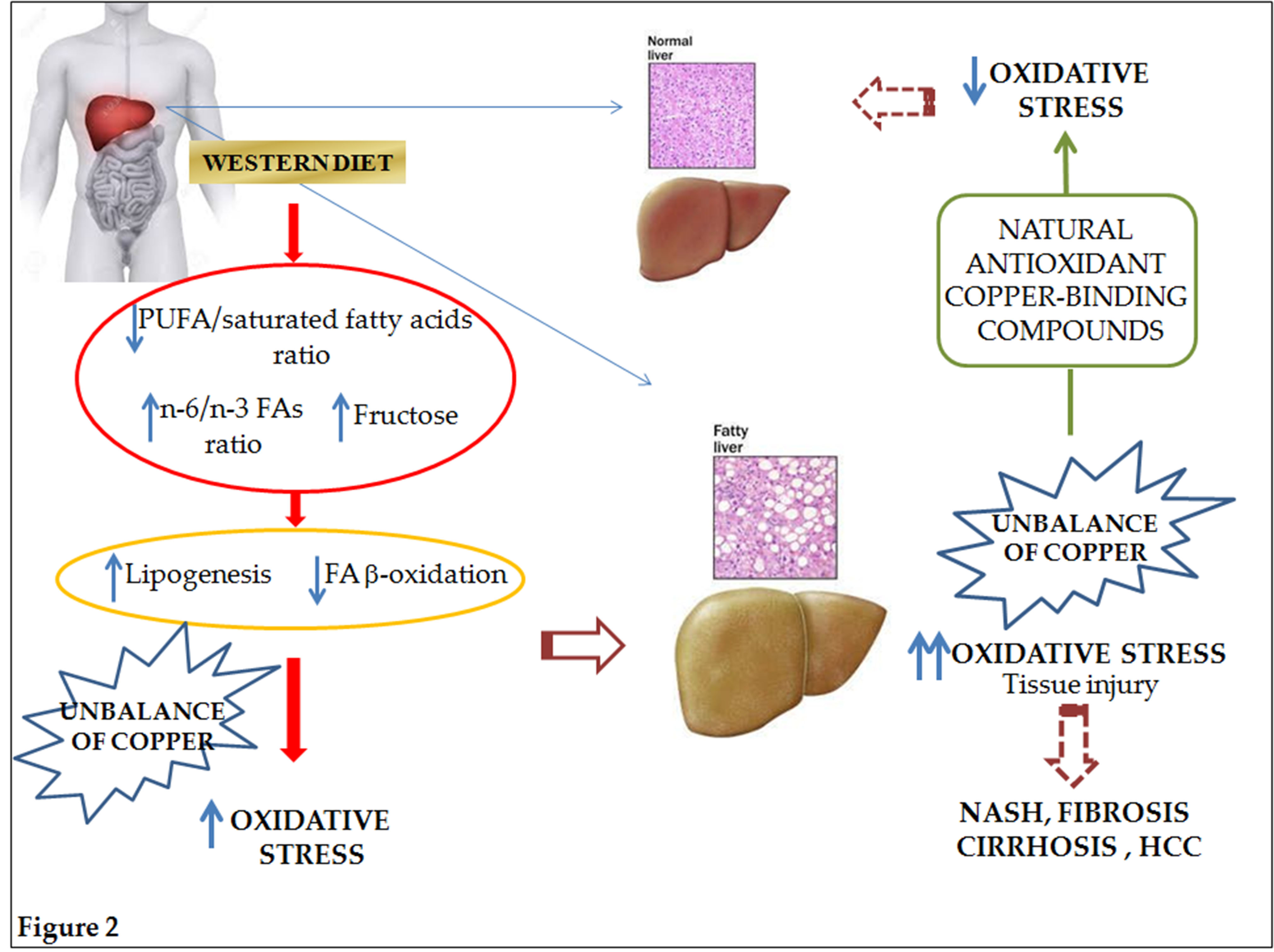Nutrients free full text non alcoholic fatty liver disease and graphical abstract ccuart Choice Image