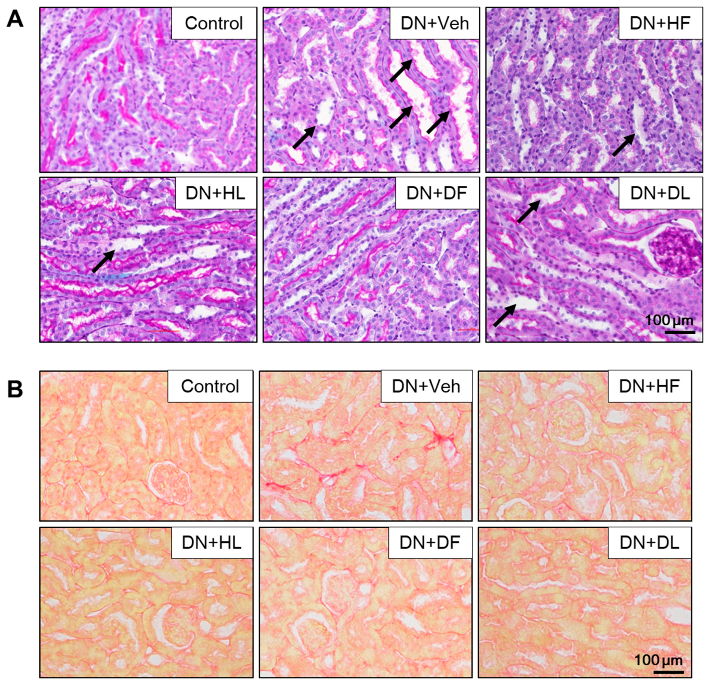 Nutrients Free Full Text Supplementation Of Abelmoschus Manihot Ameliorates Diabetic Nephropathy And Hepatic Steatosis By Activating Autophagy In Mice Html