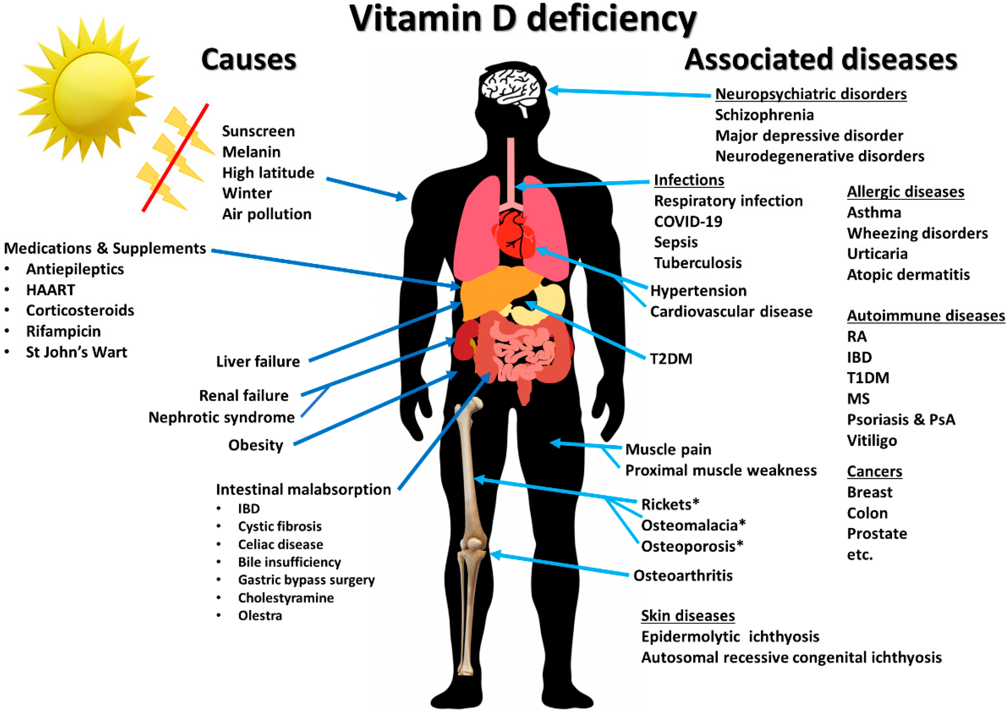 Nutrients Free Full Text Immunologic Effects Of Vitamin D On Human Health And Disease Html
