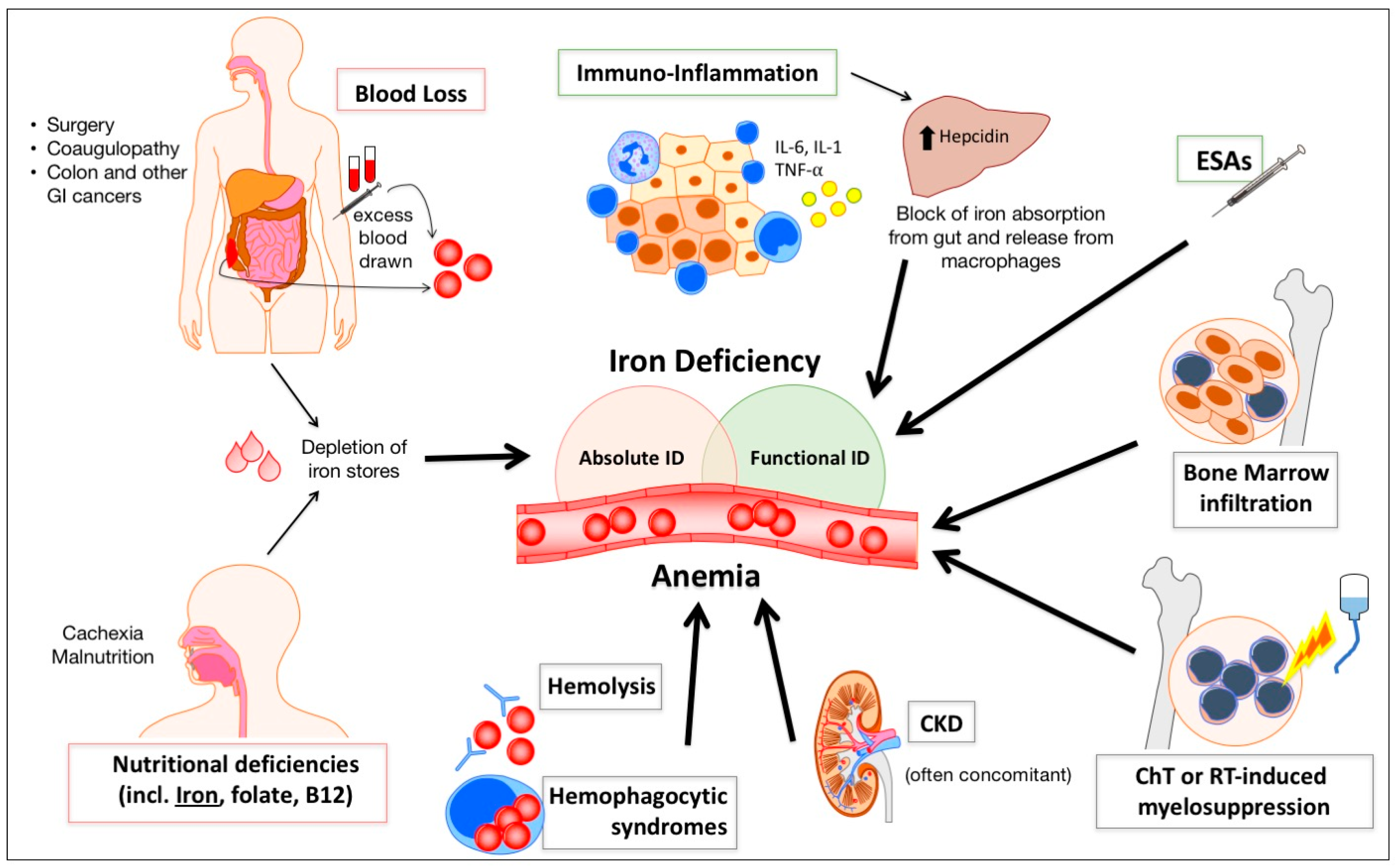 pharmaceuticals free fulltext anemia and iron