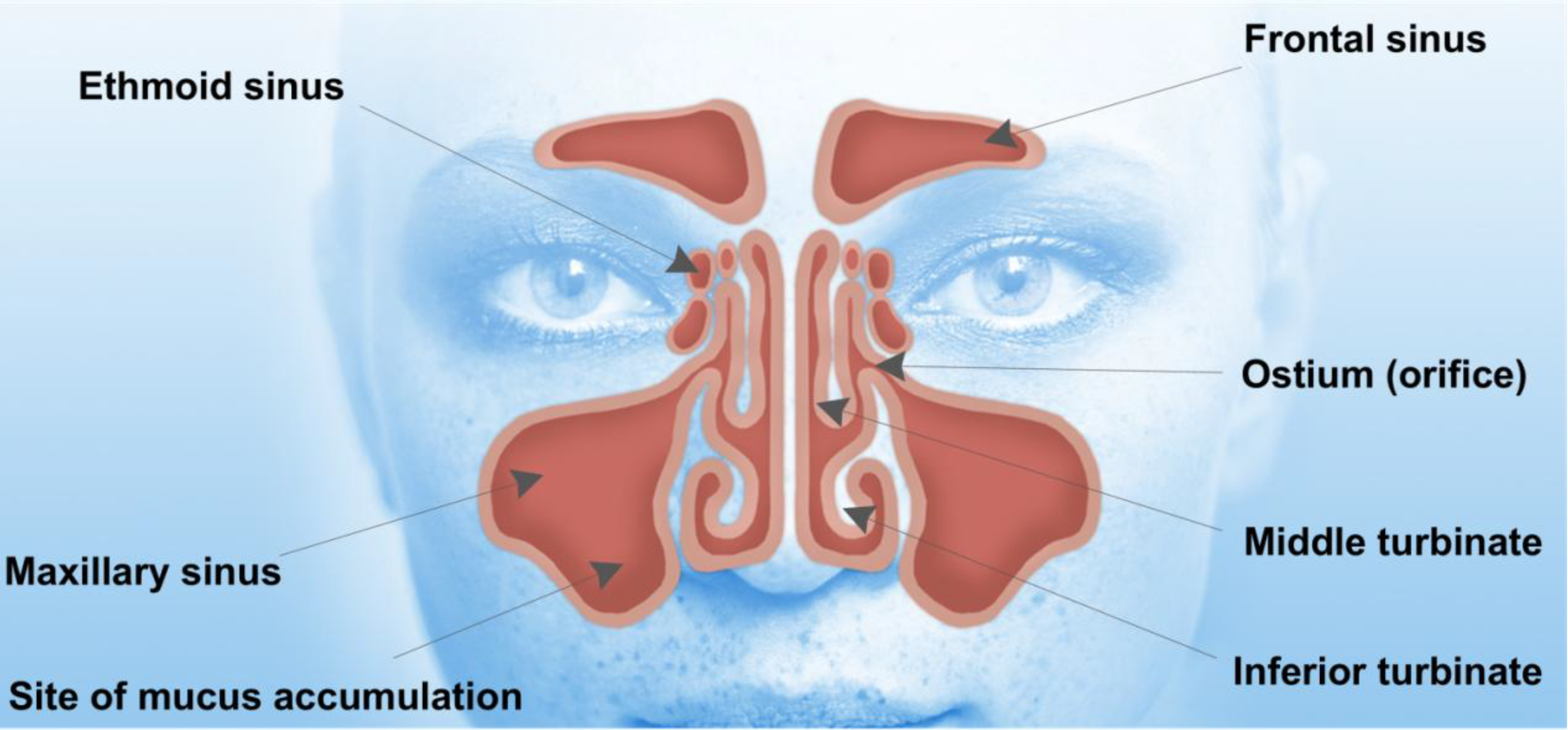 Pharmaceutics | Free Full-Text | Drug-Eluting Nasal Implants ...