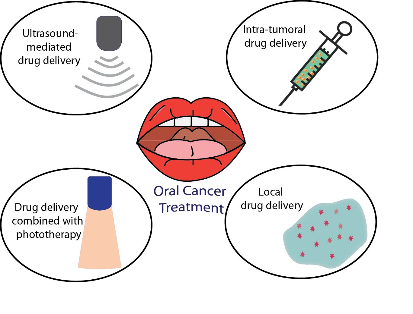 Pharmaceutics | Free Full-Text | Controlled Drug Delivery Systems for Oral  Cancer Treatment—Current Status and Future Perspectives | HTML