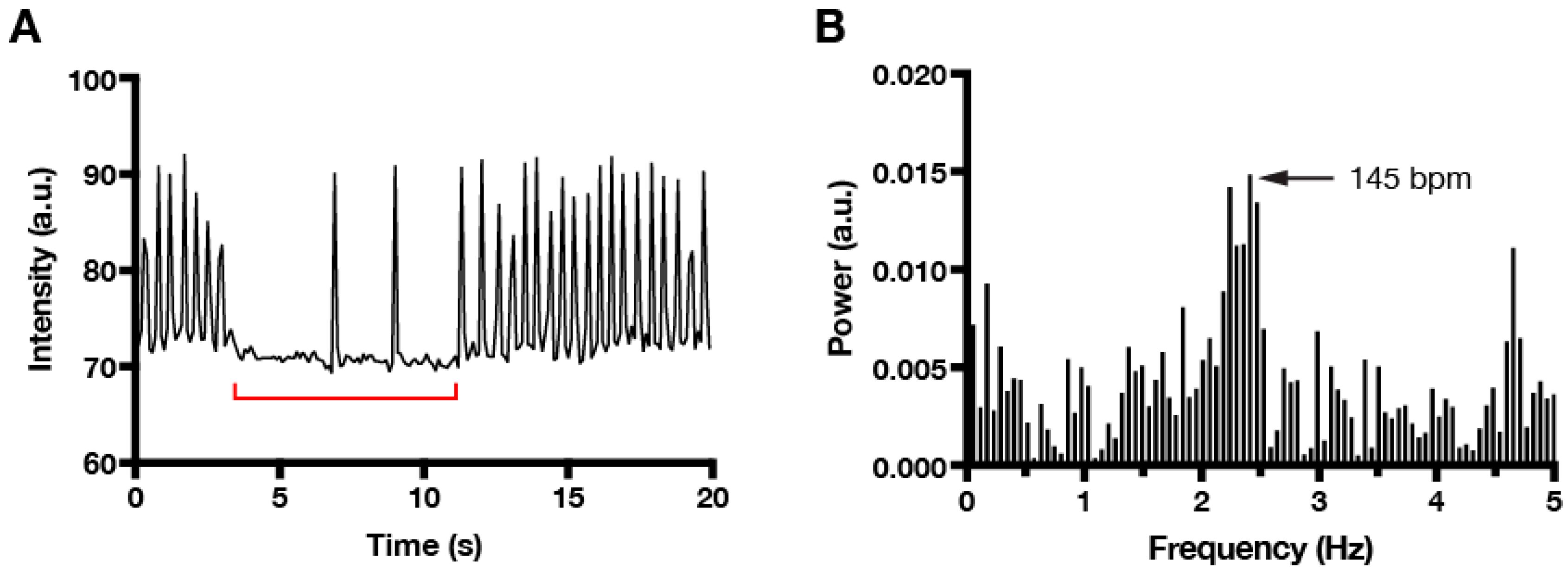 Photonics | Free Full-Text | Quantification of Cardiomyocyte