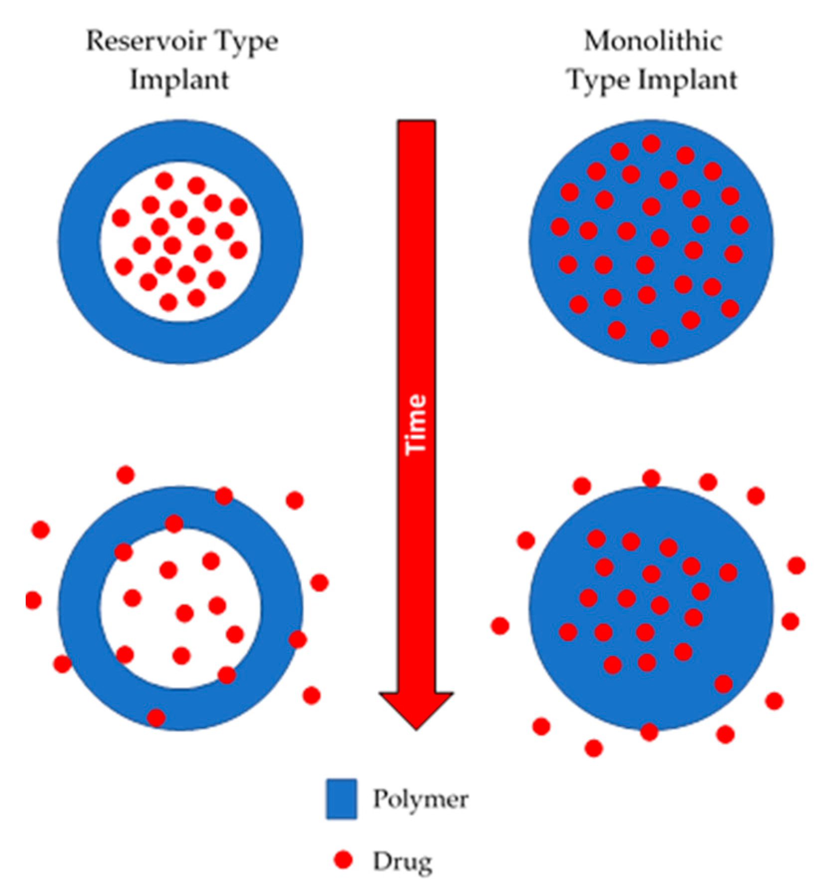 Polymers | Free Full-Text | Implantable Polymeric Drug