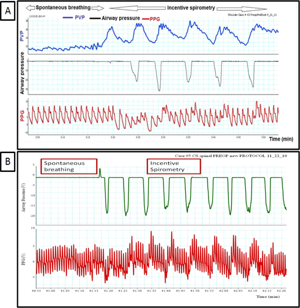 Sensors free full text respiratory physiology and the impact sensors 12 02236f2 1024 geenschuldenfo Images