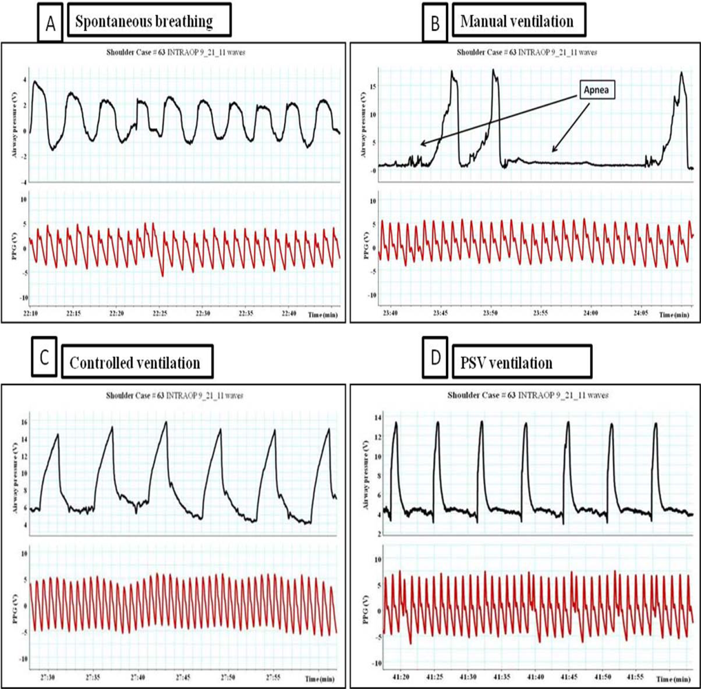 sensors | free full-text | respiratory physiology and the impact of