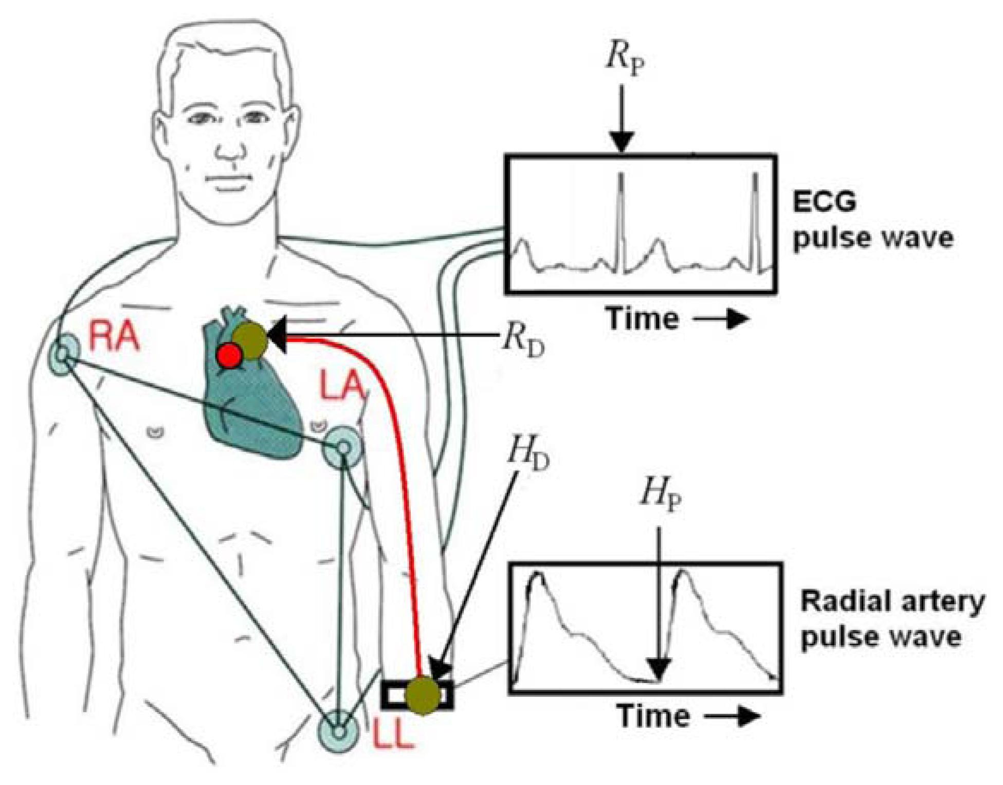 Sensors Free Full Text Measurement Of Spatial Pulse