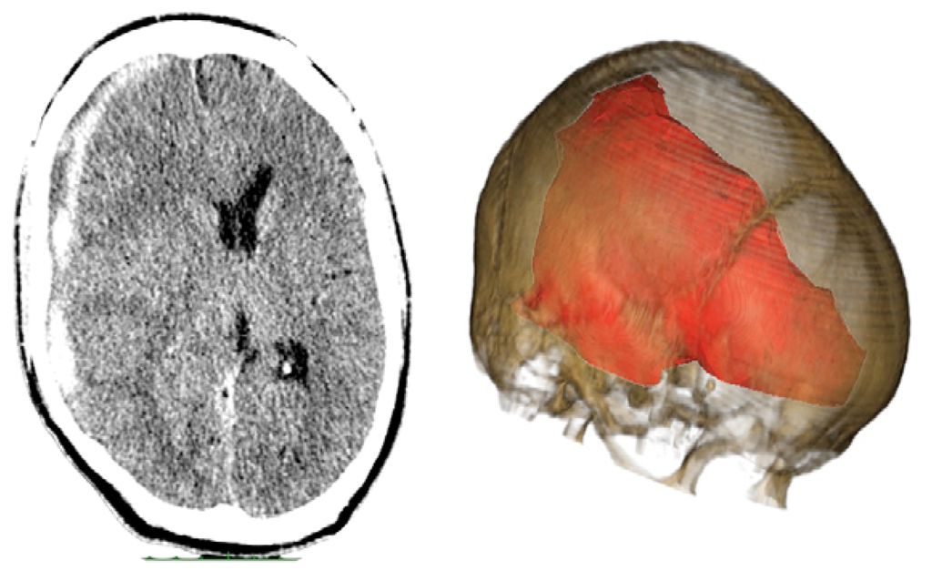 Spontaneous Superficial Parenchymal and Leptomeningeal