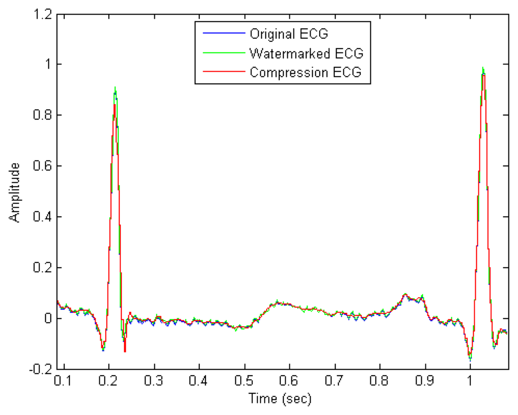 thesis on ecg data compression
