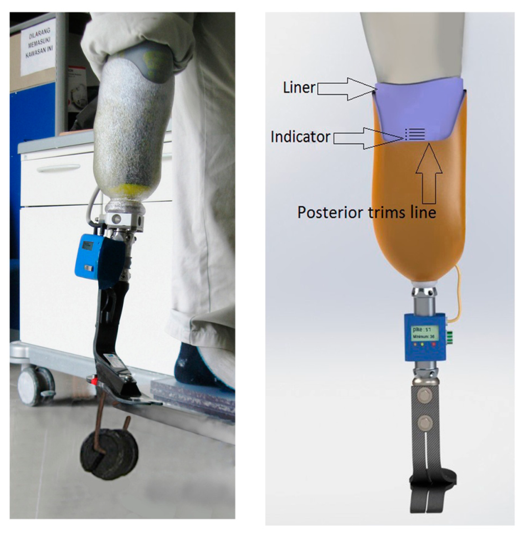 What Is a Transtibial Prosthesis?