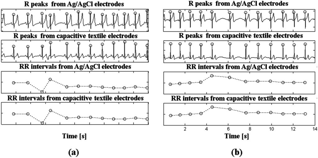 Sensors   Free Full-Text   Heart Rate Variability Monitoring