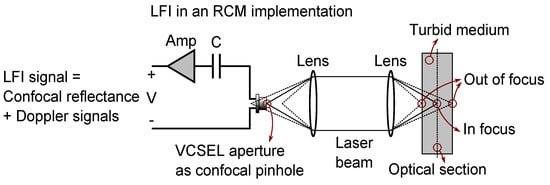 Concurrent Reflectance Confocal Microscopy and Laser Doppler Flowmetry to Improve Skin Cancer Imaging: A Monte Carlo Model and Experimental Validation
