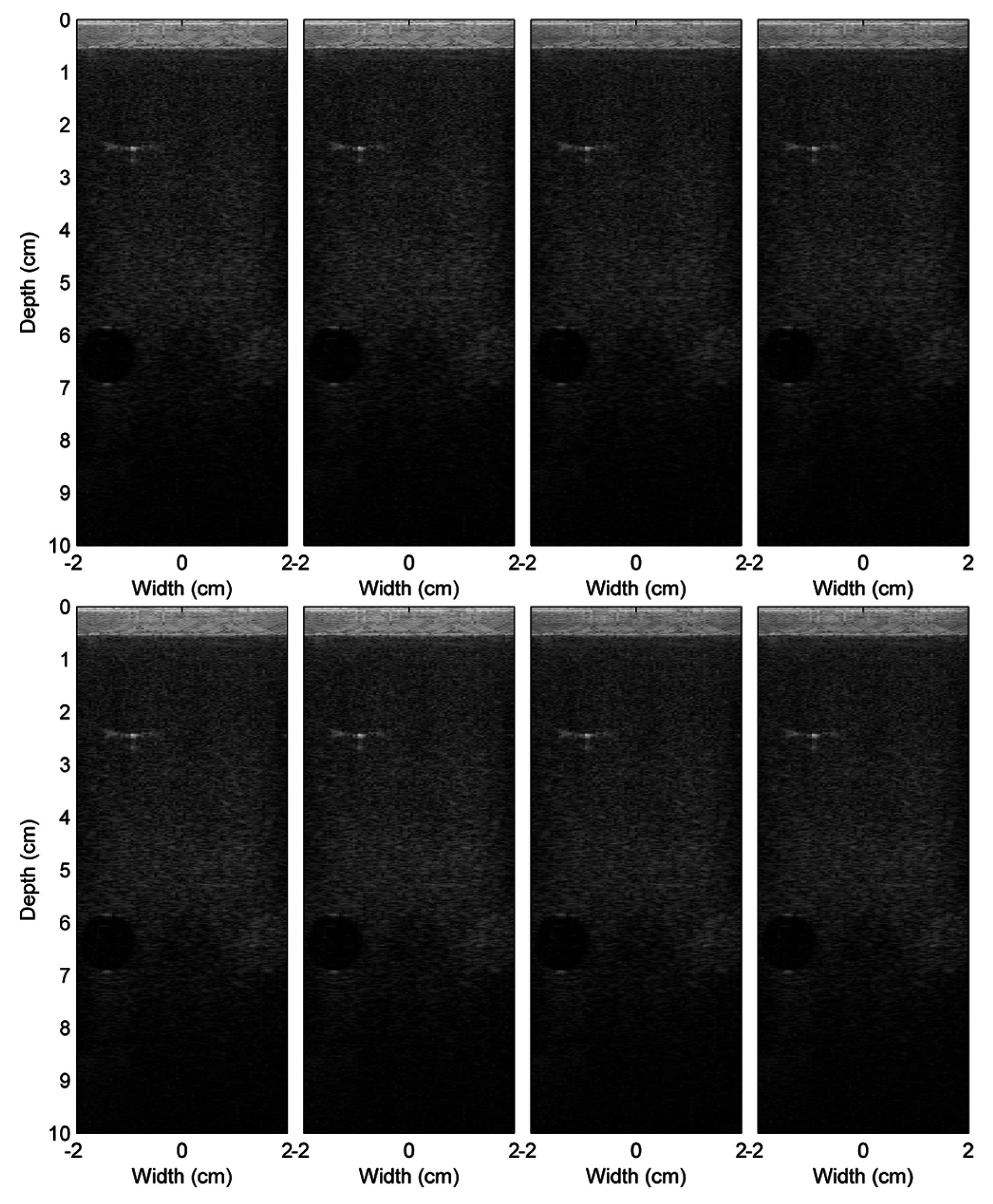 Sensors | Free Full-Text | Toward Optimal Computation of Ultrasound