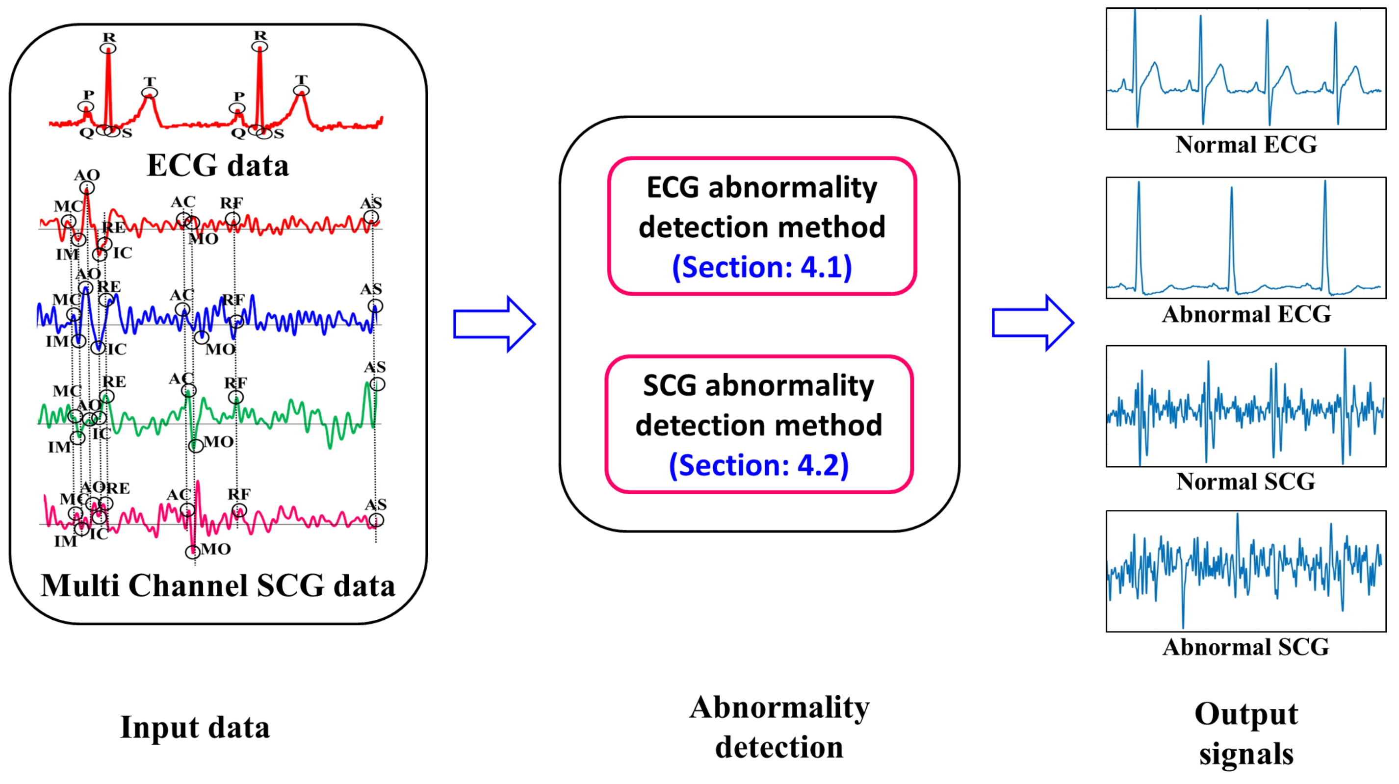 Sensors | Free Full-Text | A Cardiac Early Warning System with Multi