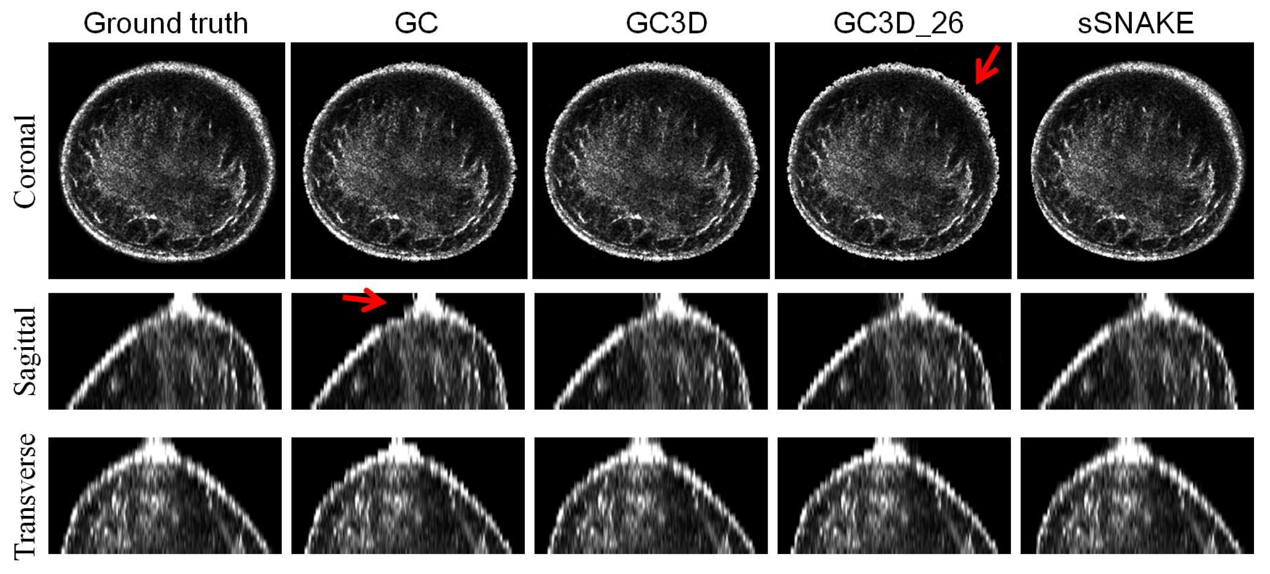 Medical abbreviation for addendum - Sensors Free Full Text Efficient Segmentation Of A Breast In B Mode Ultrasound Tomography Using Three Dimensional Grabcut Gc3d Html