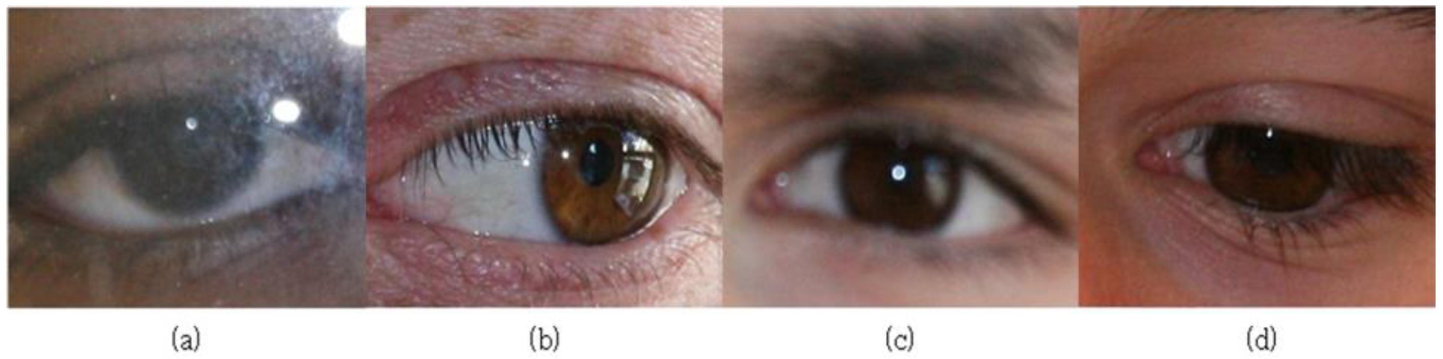 Sensors | Free Full-Text | Noisy Ocular Recognition Based on